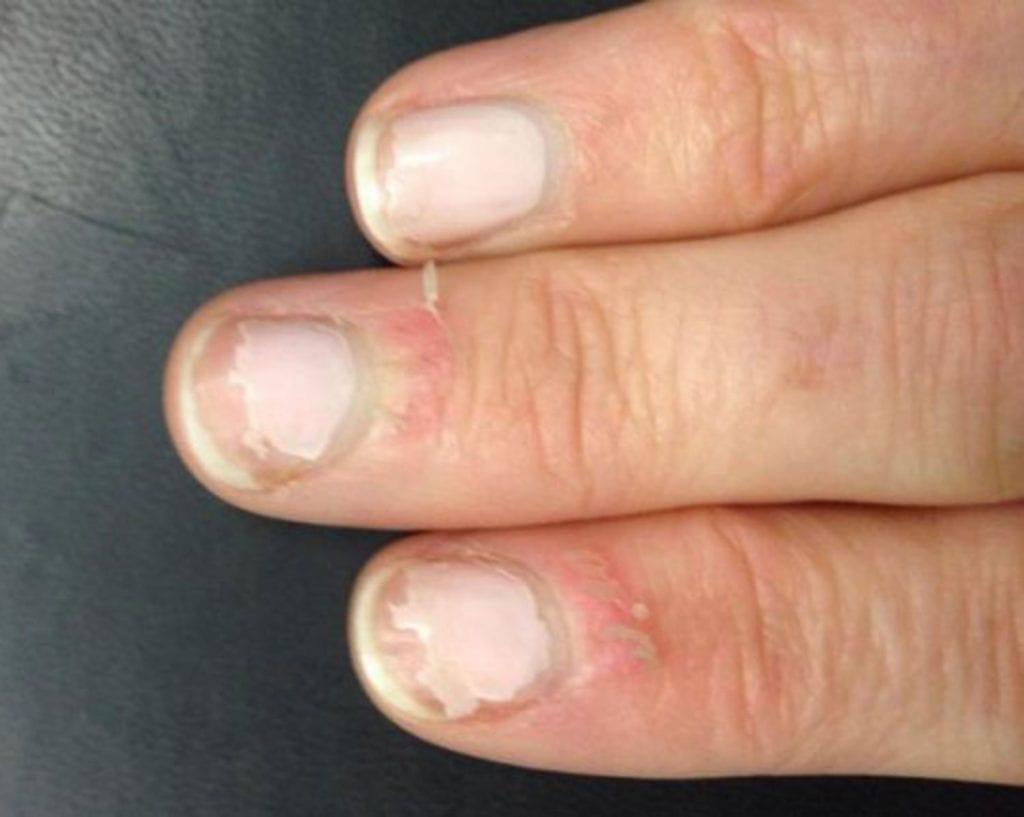 Ring Finger Skin Peeling